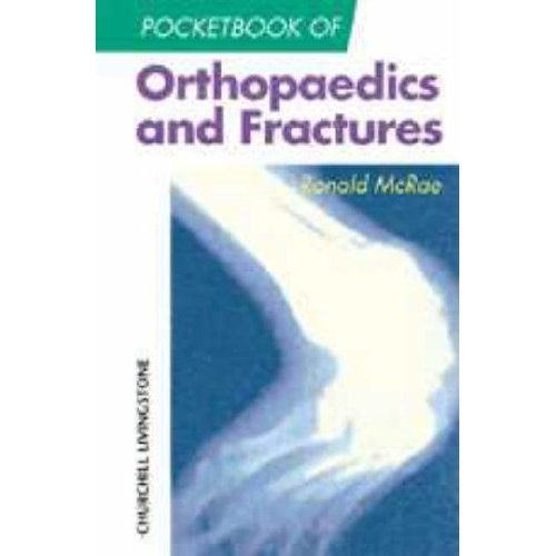 Pocketbook of Orthopaedics and Fractures (Churchill Pocketbooks)