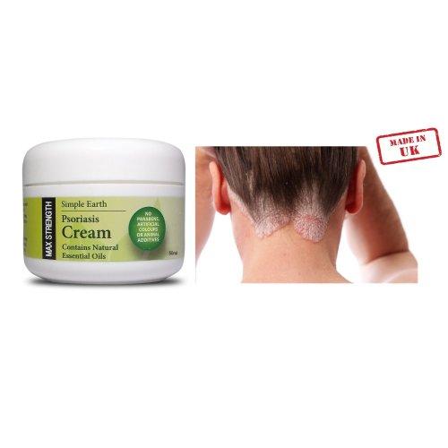 Max Strength Advanced Psoriasis Cream 50ml Adult use